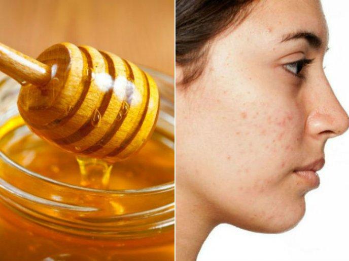usos de la miel